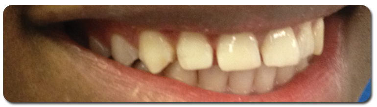 smile1-after - Finney Family Dentistry in Marion