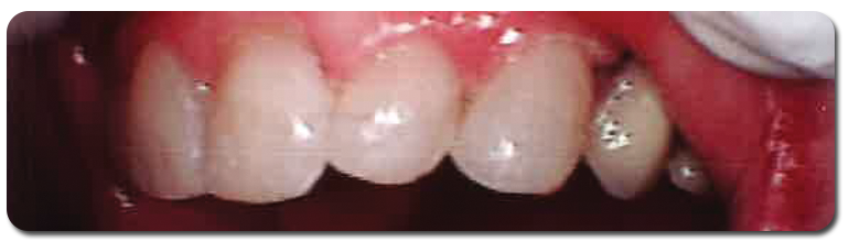 smile5-after - Finney Family Dentistry in Marion